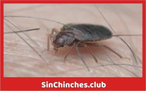 chinches sintomas